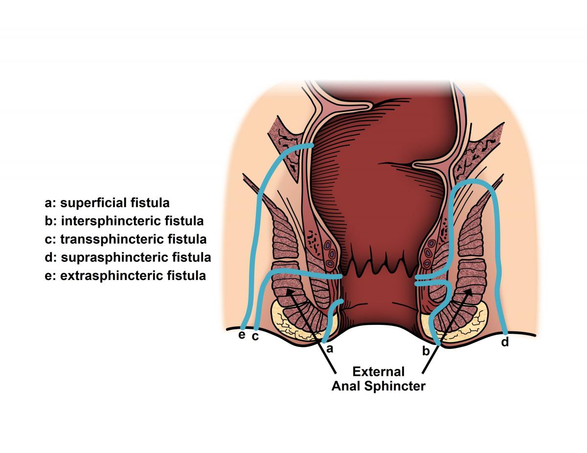 Abscess And Fistula Ascrs