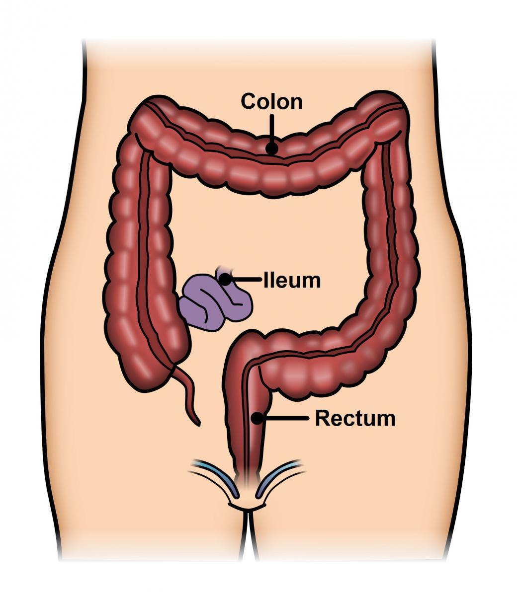 Ulcerative Colitis Ascrs