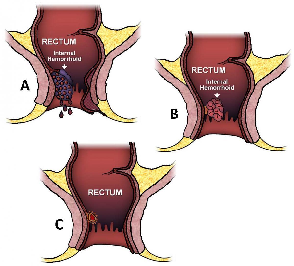 Hemorrhoids Ascrs