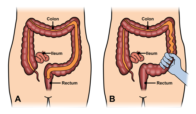 Irritable Bowel Syndrome Expanded Version Ascrs